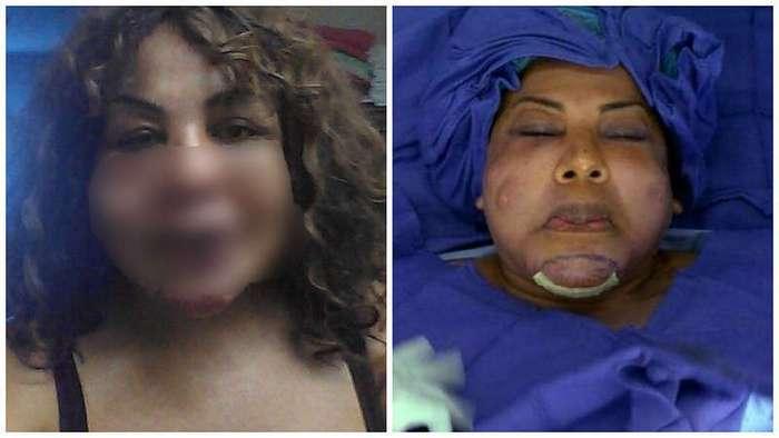 Пластический хирург-шарлатан ввел ей под кожу цемент. Слабонервным не смотреть!