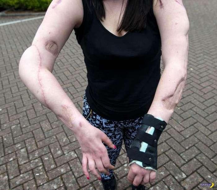 Когда выжила после аварии на мотоцикле