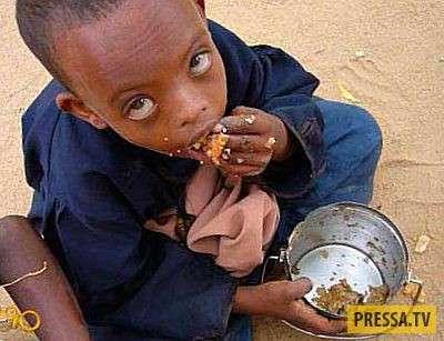 ТОП-10 стран, где люди страдают от нехватки еды (10 фото)