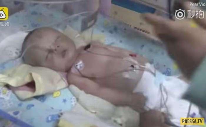 Собака откопала на свалке младенца, которого похоронили заживо (фото + видео)
