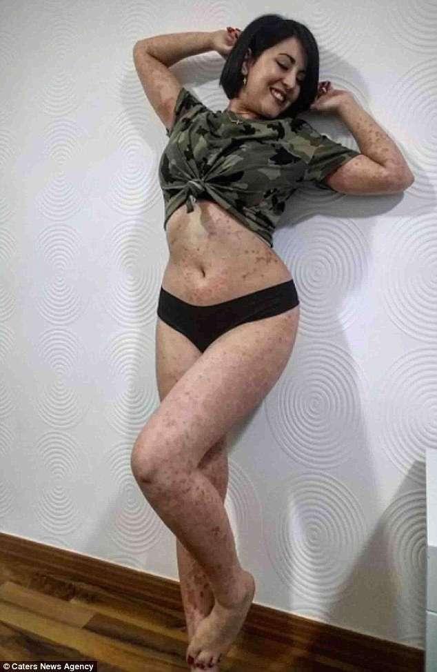 Девушка, страдающая псориазом, не стесняется демонстрировать свою красоту