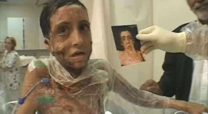 """Лицо этой девочки буквально """"расплавилось"""" во время пожара. Но этот хирург сотворил чудо!"""