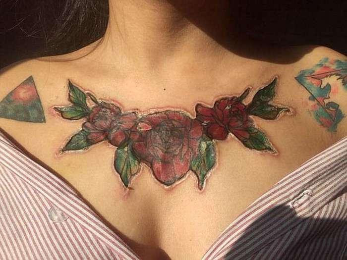Самостоятельная попытка удалить татуировку изуродовала студентку (7 фото)