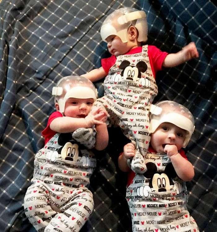 Один шанс на 500 триллионов: почему эти тройняшки носят специальные шлемы? (12 фото)