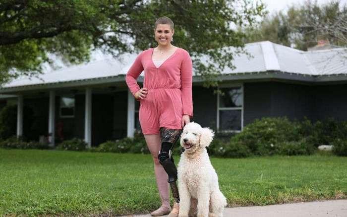 Хирурги приспособили лодыжку девушки на место удаленного коленного сустава (8 фото)