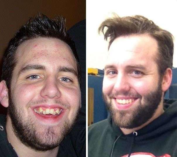 Брекеты: до и после (41 фото)