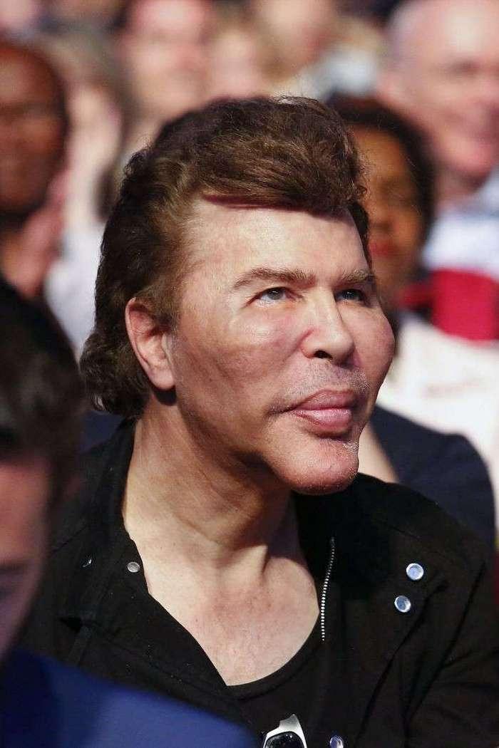 Жертва пластики телеведущий Игорь Богданов шокировал Канны обезображенным лицом (9 фото)
