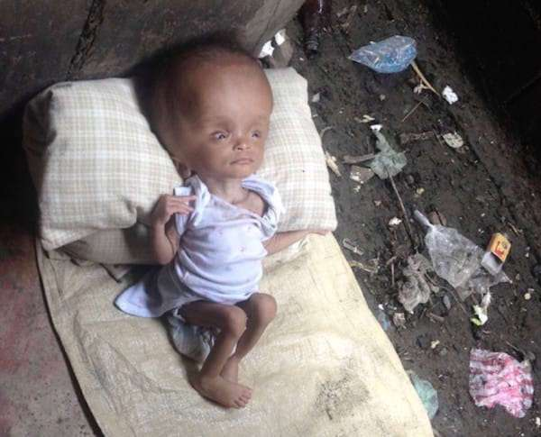 Врач полгода лечила маленькую девочку. Когда она пришла к ней домой, обнаружила нечто ужасное...