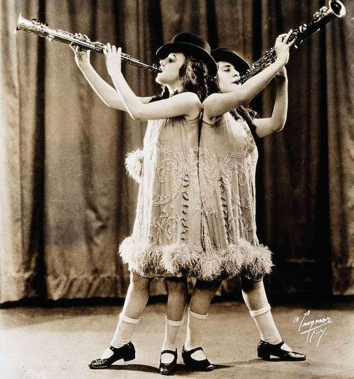 Подлинные истории сиамских близнецов (16 фото)