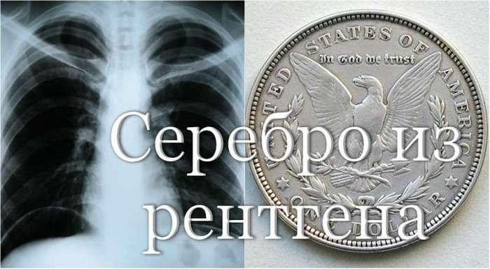 Оказывается, серебро производят и из рентген снимков