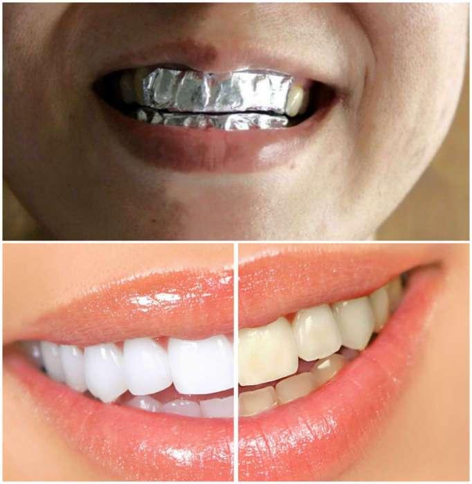отбеливание зубов фольгой и содой отзывы