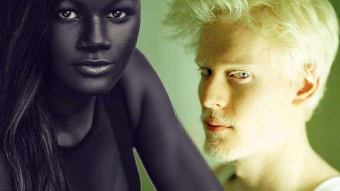 5 людей с удивительным цветом кожи, которыми не возможно не любоваться
