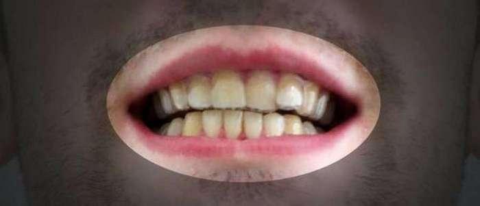 Парень + 3D-принтер = ровные зубы (11 фото)