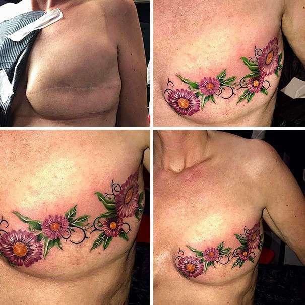 Татуировки, превратившие шрамы в произведения искусства