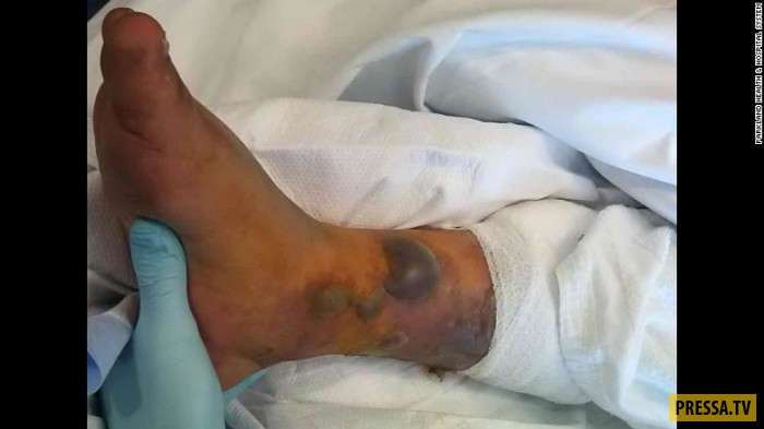 Самая нелепая смерть: он сделал татуировку, искупался и умер (5 фото)