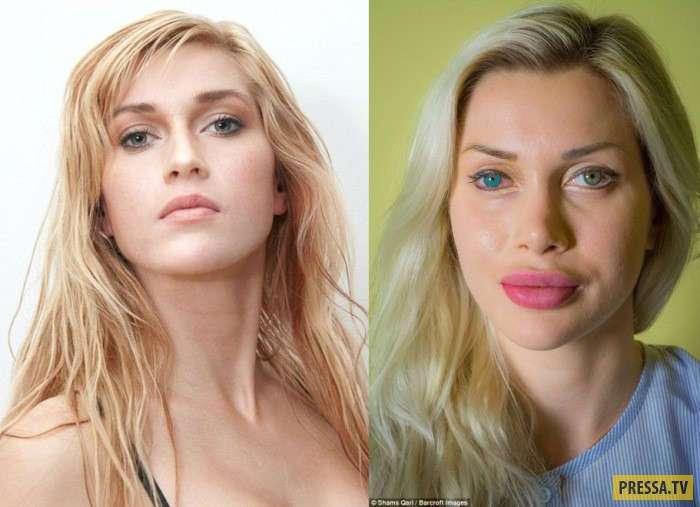 Жительница Швеции Пикси Фокс сделала 11 операций, чтобы быть похожей на Барби (10 фото)