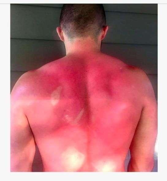 Зачем вам нужен крем от солнца?