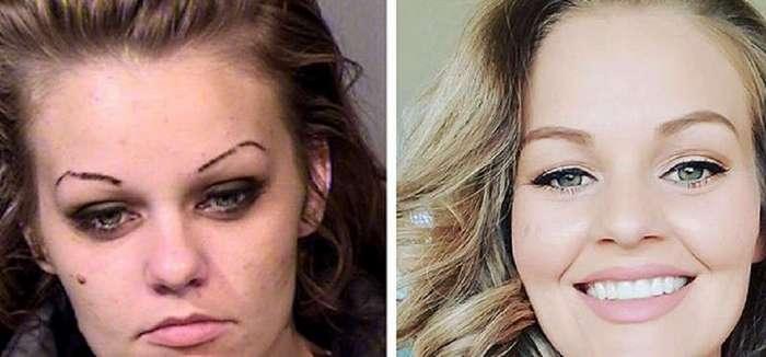 Наркозависимость: до и после (26 фото)