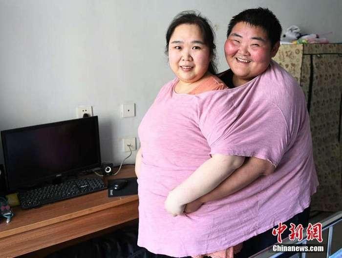 Супруги похудели на 200 килограмм, чтобы завести ребенка (7 фото)