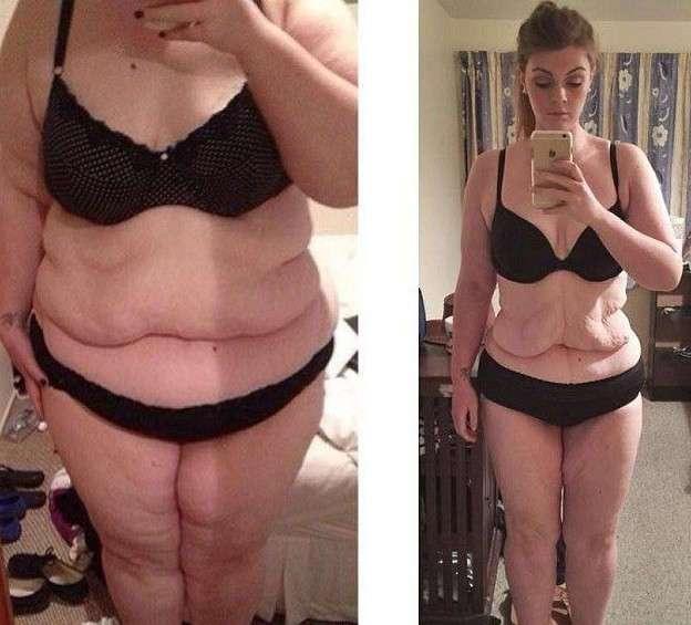 Главное что бы не вывалилось: обратная сторона похудения (22 фото)