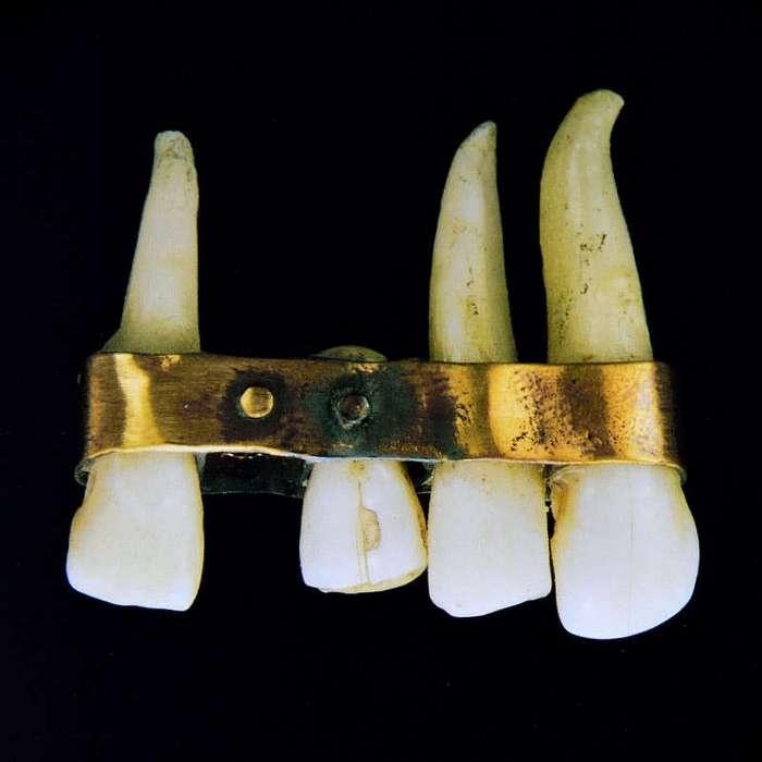 Зубы: Впечатлительным просьба не заходить! (33 фото)