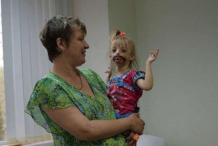 Впервые увидев новорожденную дочь, 42-летняя мать упала в обморок от ужаса (8 фото)