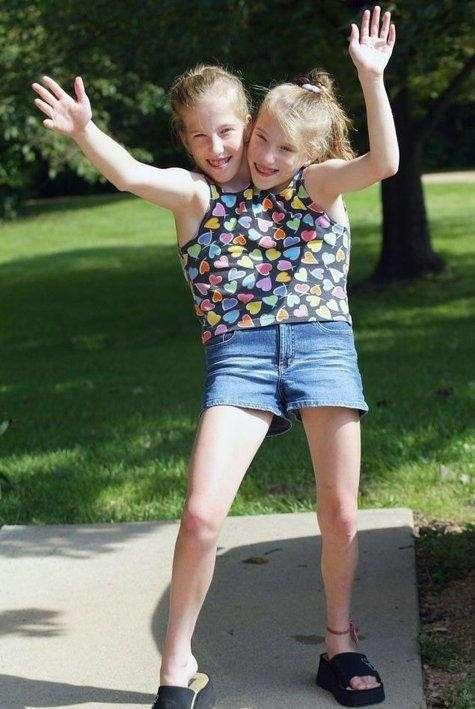 Одно тело на двоих: как живут сиамские близнецы Эбигейл и Бриттани Хенсел (11 фото)
