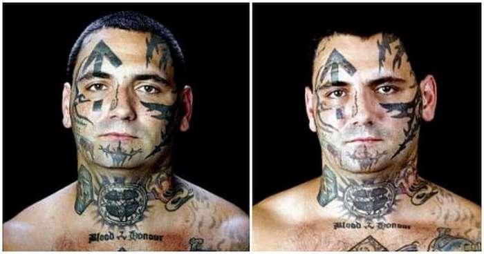Бывший нацист сделал 25 операций, чтобы избавиться от расистских татуировок (15 фото)
