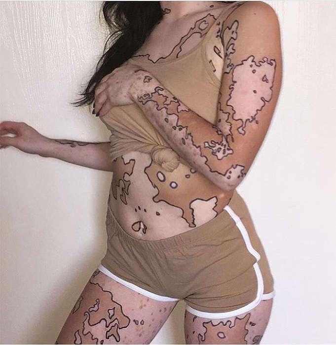 Болезнь как искусство: девушка с редким генетическим заболеванием рисует на своем теле невероятные картины