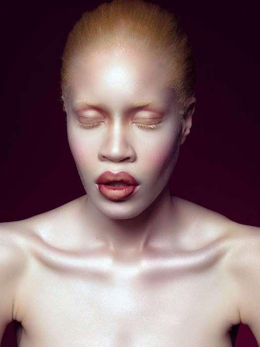 Другая красота: модели с изъянами, которые покорили мировые подиумы