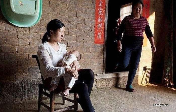 В Китае родился ребеночек с 31 пальцем (5 фото)