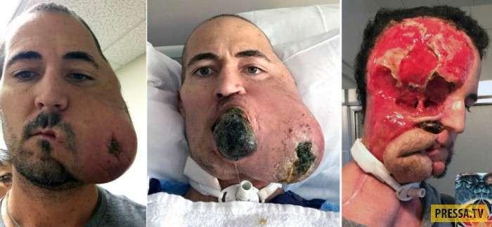 Шокирующие кадры: Мужчина лишился половины лица из-за жуткой опухоли (3 фото)