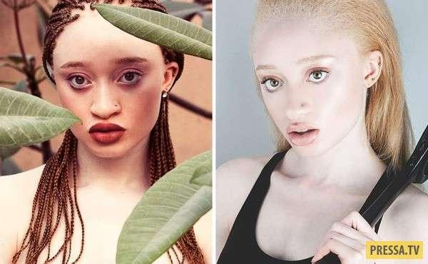 Успешные модели, доказавшие, что внешность - не главное (8 фото)