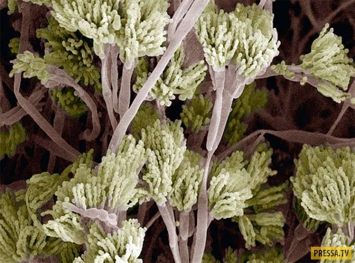 Человек под микроскопом (25 фото)