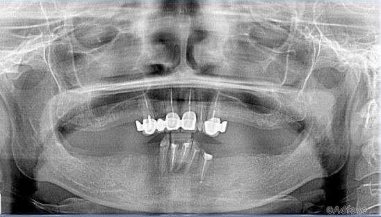 Записки стоматолога или понты дороже собственных зубов