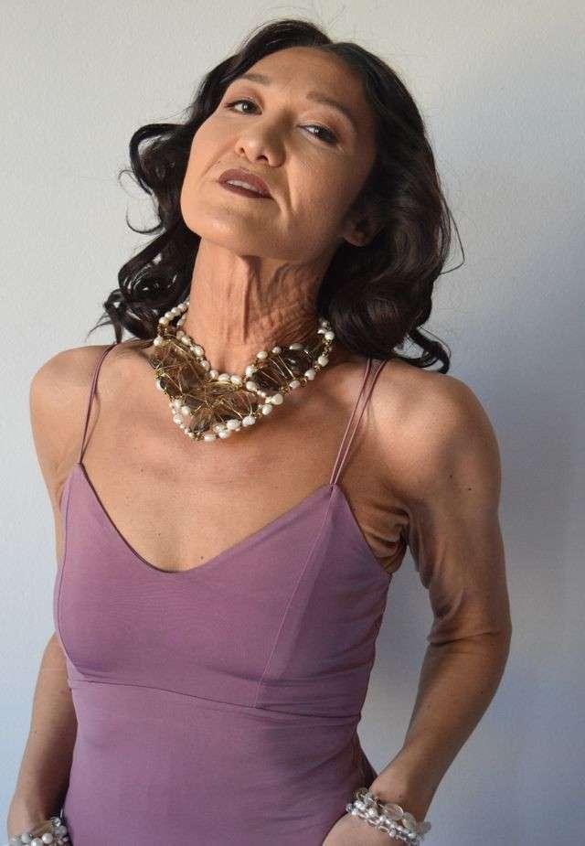 Модель с редким заболеванием решила рассказать всему миру о своей проблеме. Смелости ей не занимать! (13 фото)
