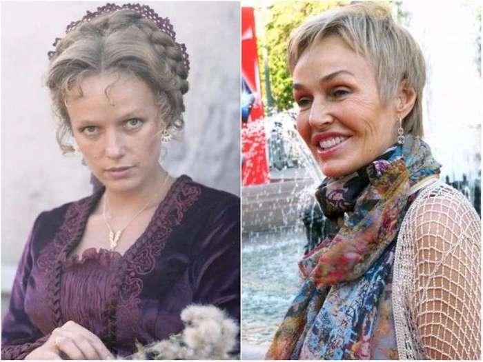 Российские знаменитости, изменившиеся до неузнаваемости после пластических операций (10 фото)