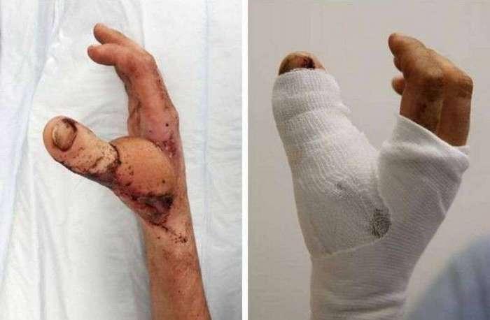 20-летнему фермеру из Австралии успешно пересадили большой палец ноги на руку (5 фото)