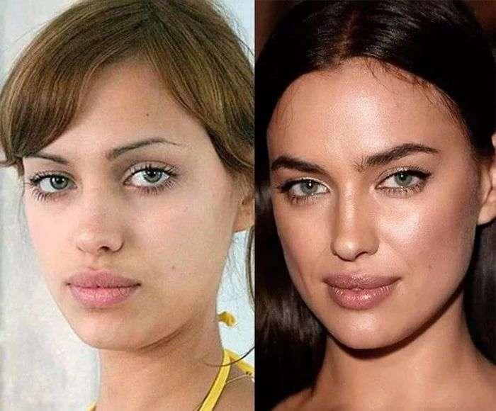 Российские звезды до операций и после (10 фото)