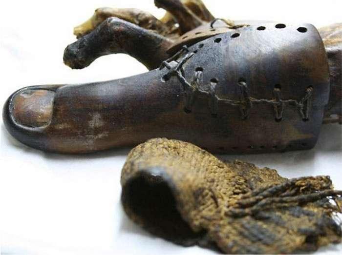 Страшные и удивительные протезы прошлого (21 фото)