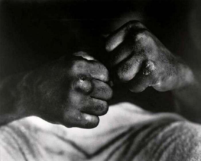 Интересные фотографии известных людей <br><br><b> <b>Руки Мухаммеда Али после боя с Генри Купером, 1966 год.</b> </b><br><img class=