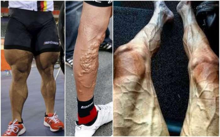 Велосипедисты шокируют видом своих ног! Этот пост лучше не смотреть тем, кто боится варикоза -16 фото-