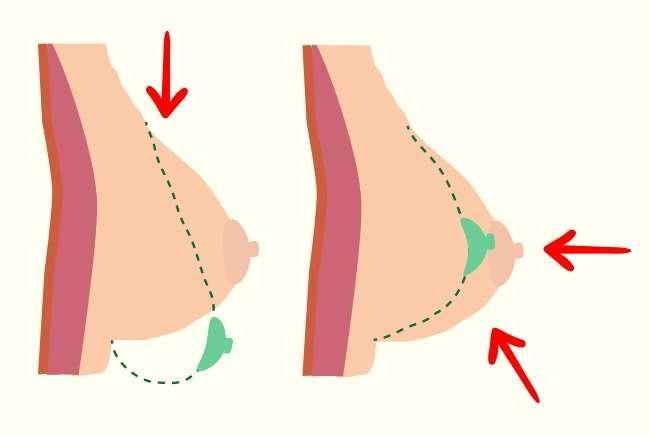 4причины перестать носить бюстгальтер, чтобы сохранить грудь красивой издоровой