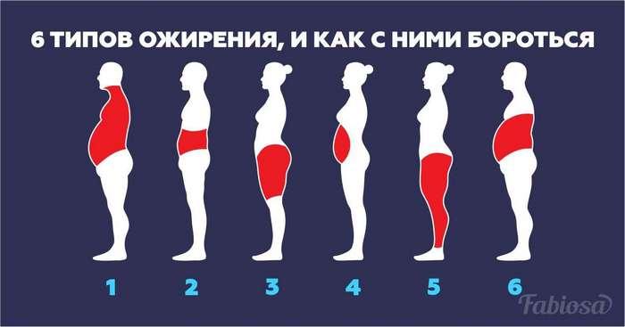 6 типов ожирения, и как с ними бороться