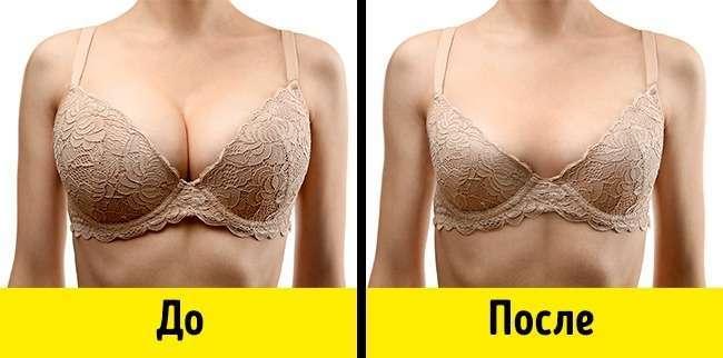 9симптомов гормонального дисбаланса, которые портят нашу внешность