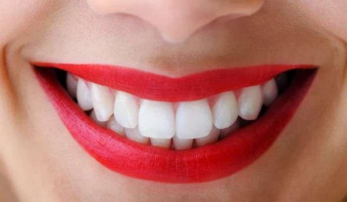 Как безопасно отбелить зубы дома: Метод производителей Colgate