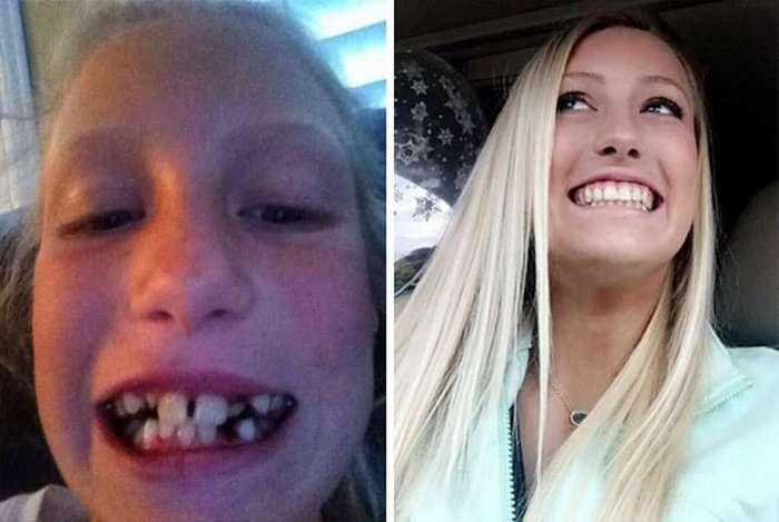 Чудеса современной стоматологии (41 фото)