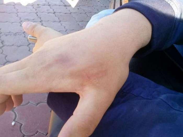 Студент вживил себе под кожу чип (3 фото)