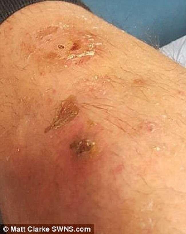Ядовитые пауки Британии могут сделать человека инвалидом!-7 фото-