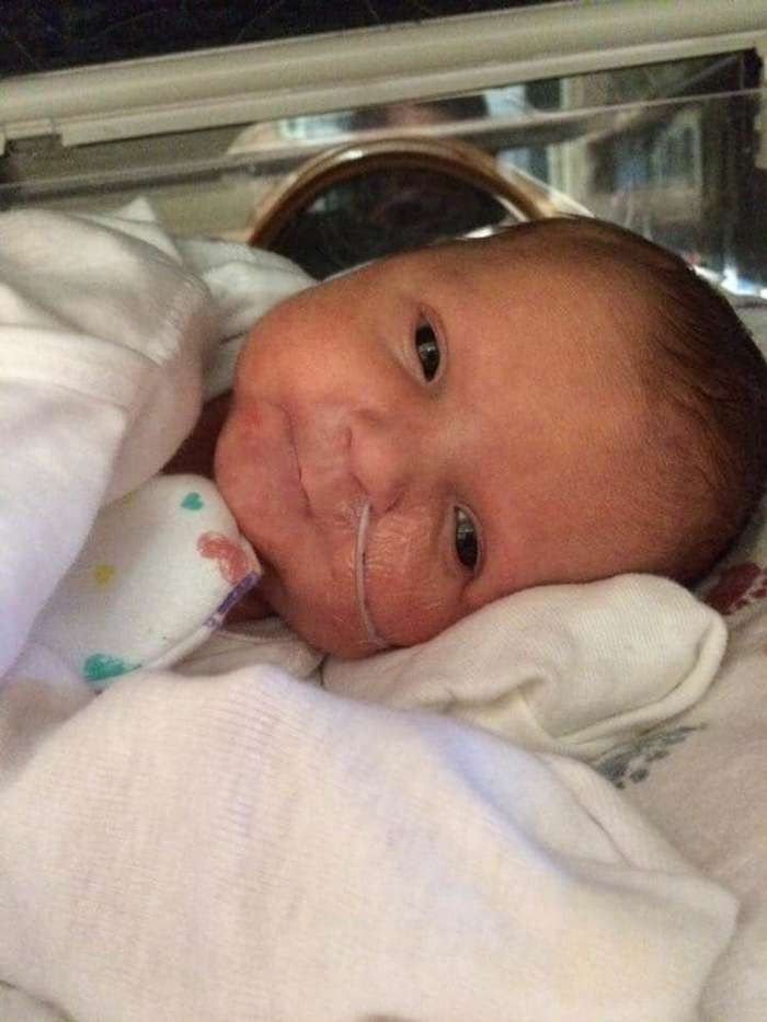 Выжили: 13 улыбающихся младенцев, родившихся раньше срока-14 фото-